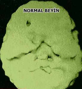 Normal Beyin